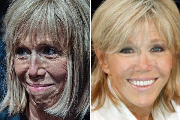 Фото до и после пластики