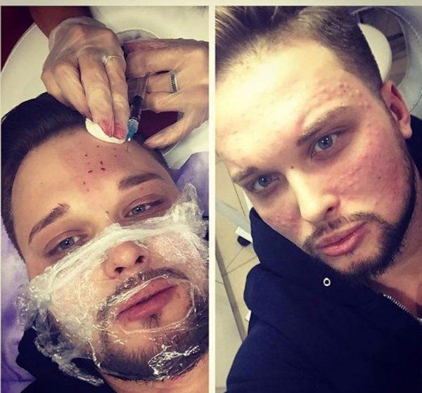 На лице Егора была проведена операция по удалению лишнего жира