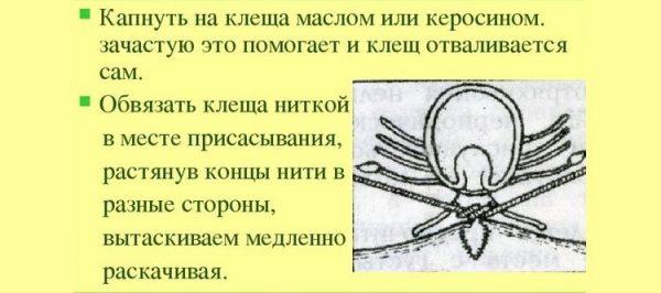 Как снять клеща при помощи нитки