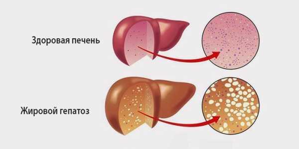 Здоровая печень и ге