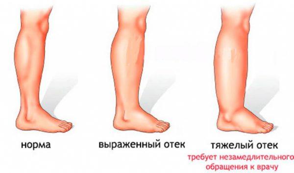 Степени отека ног