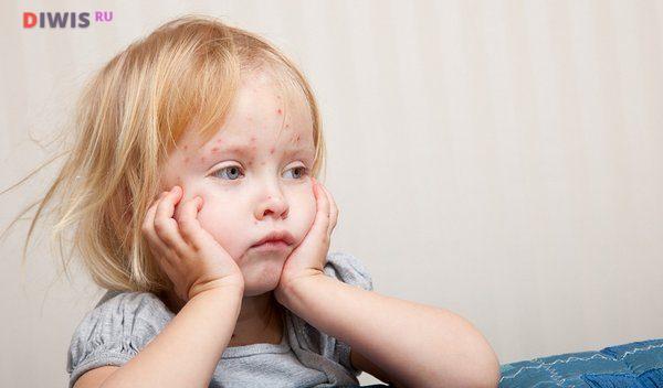 инкубационный период у детей проходит без симптомов