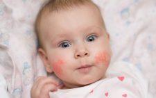 Все про аллергический диатез у детей