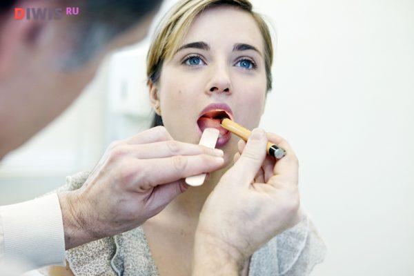 Ожог языка: первая помощь и лечение