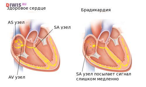 Что такое Брадикардия сердца и как ее лечить