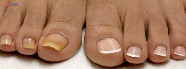 5 самых эффективных препаратов против грибка ногтей на ногах
