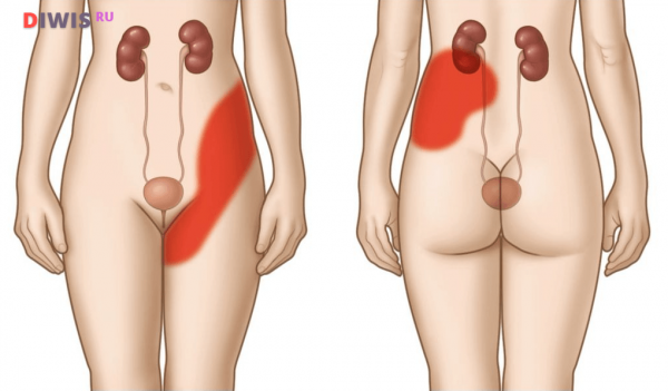Камни в почках - симптомы у женщин