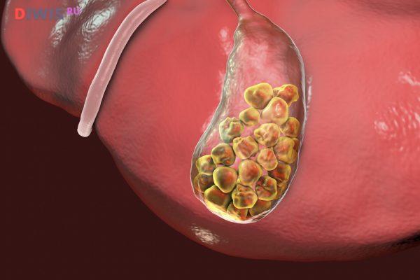 Симптомы камней в желчном пузыре и лечение без операции