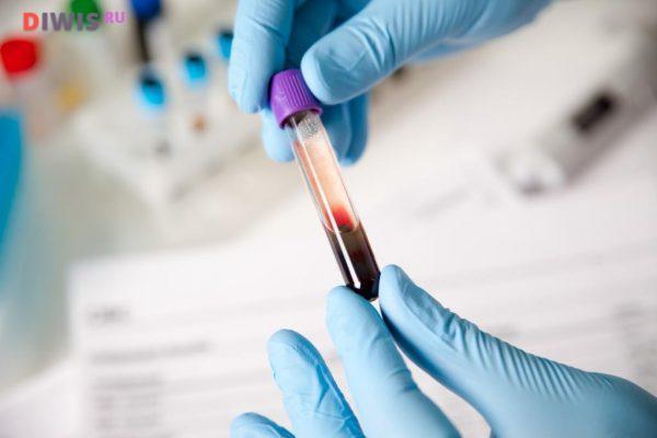 Симптомы повышения мочевой кислоты в крови