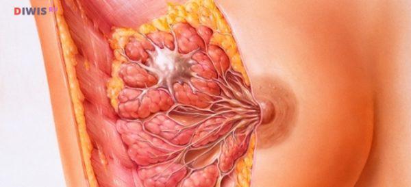 Фиброзно-кистозная мастопатия молочной железы
