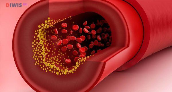 Как быстро снизить холестерин в домашних условиях