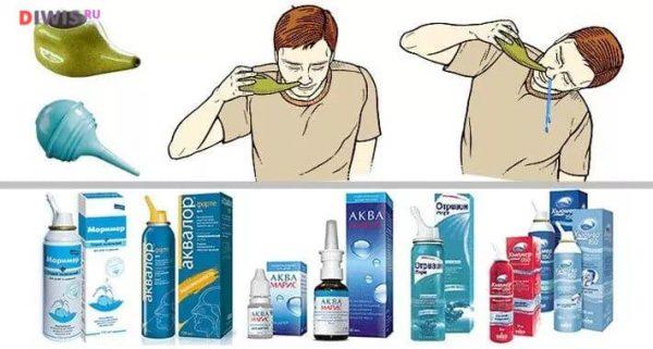 Причины и лечение заложенности носа без насморка