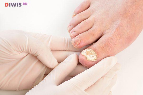Как лечить грибок ногтей на ногах уксусом и яйцом?