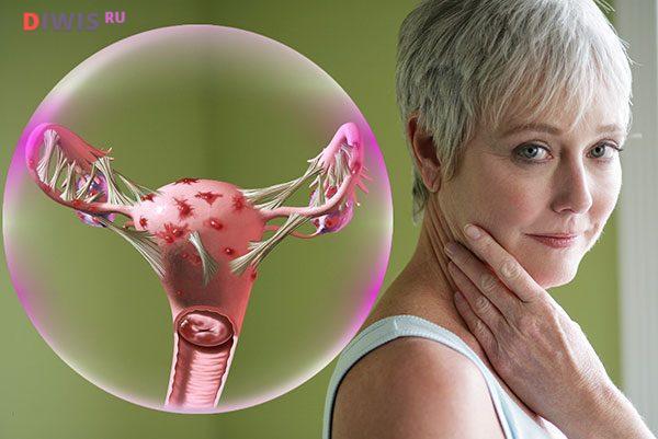 Как лечить эндометриоз у женщин после 40 лет