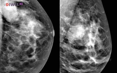 Что такое фиброаденома молочной железы и как ее лечить