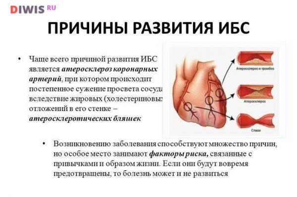 Как распознать симптомы ишемической болезни сердца у мужчин