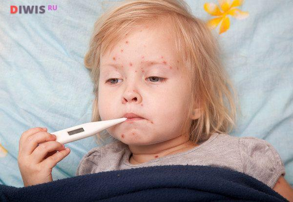 Чем опасна ветряная оспа у детей и взрослых и методы лечения