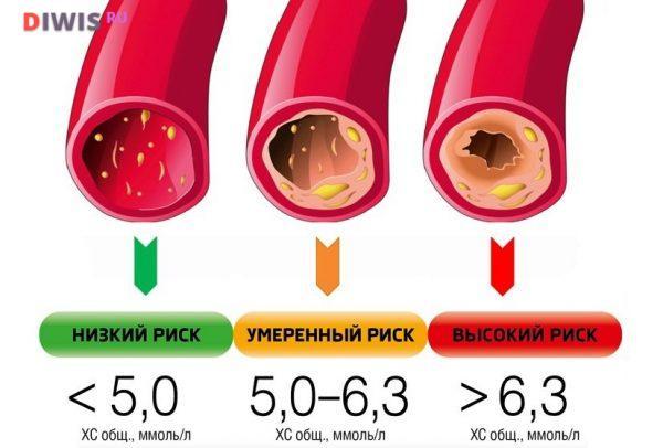 Норма сахара и холестерина в крови у женщин после 50 лет