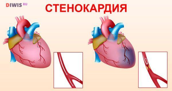 Каковы симптомы ишемической болезни сердца у женщин