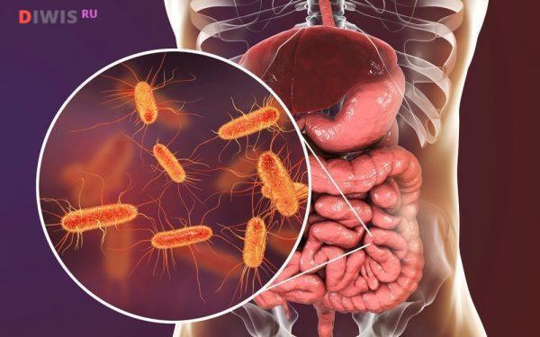 Симптомы и лечение дисбактериоза кишечника у женщин