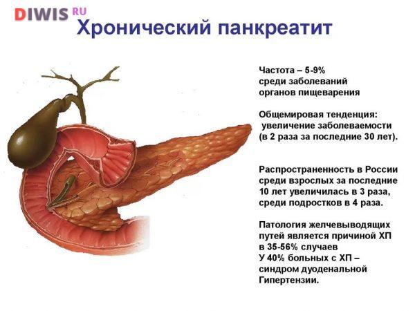 Признаки и лечение панкреатита у мужчин