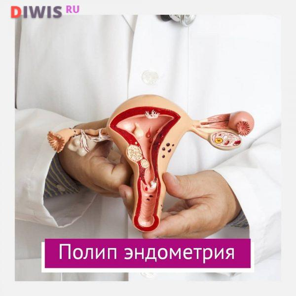 Симптомы и лечение полипов эндометрия в матке