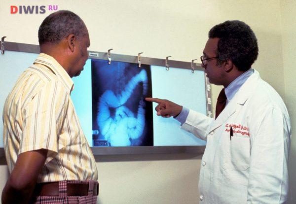 Симптомы рака кишечника у женщин на ранних стадиях