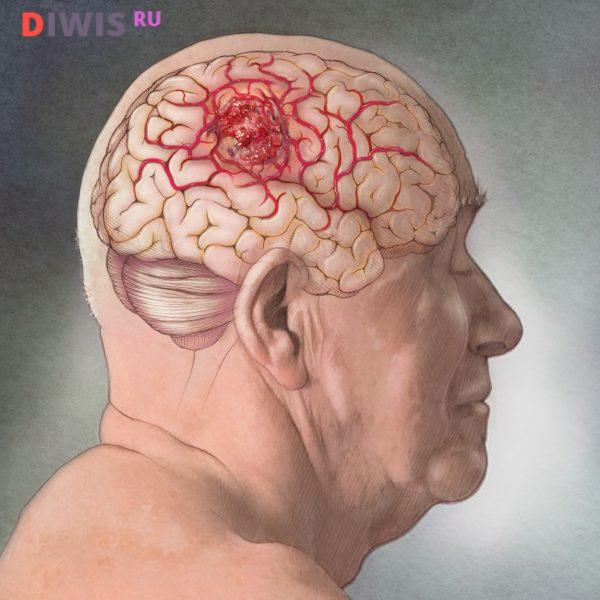 Симптомы опухоли головного мозга на ранних стадиях у взрослого