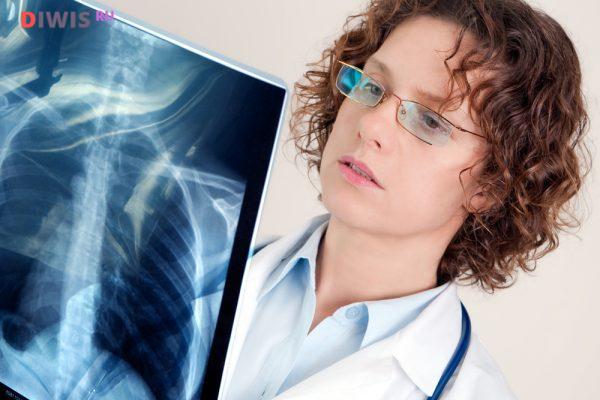 Симптомы и чем лечить воспаление легких у взрослых
