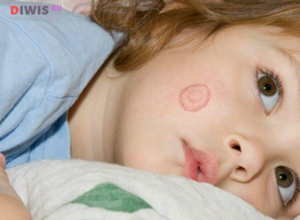 Чем эффективно лечить лишай у детей